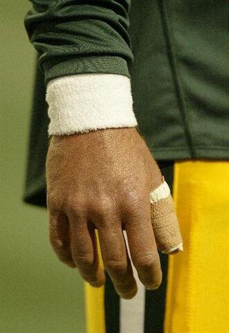 File:Broken Thumb.jpg