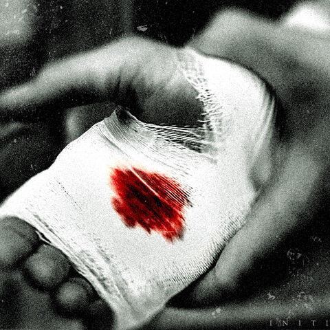 伊曼纽尔受伤的手掌