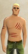 Freddy's Flesh Wounds