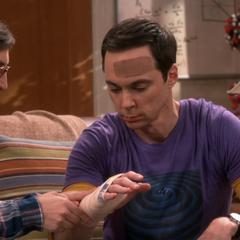 Sheldon's injured hand.