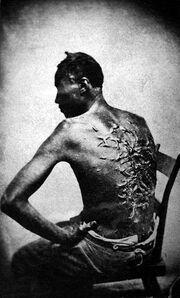 Slave scars