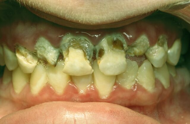 File:Tooth-decay-4-1-.jpg