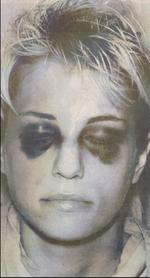 Homolka black eyes