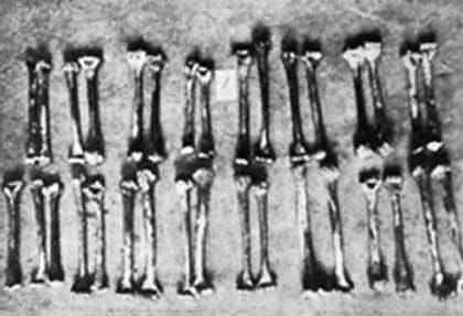 File:Haarmann Bones.jpg