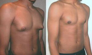 Adolescent with Gynecomastia