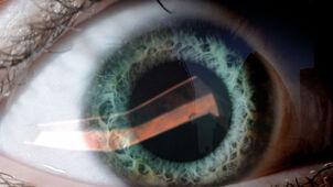 Fd4 vision 12