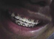 File:Braces.PNG