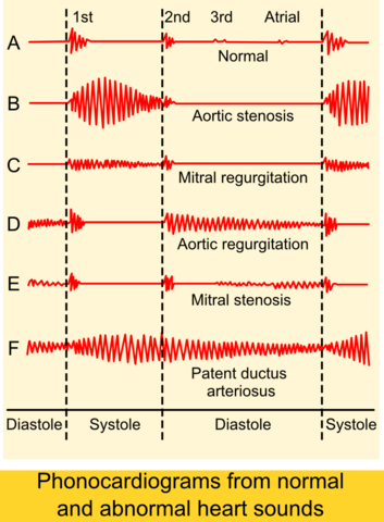 File:Phonocardiograms from normal and abnormal heart sounds.png