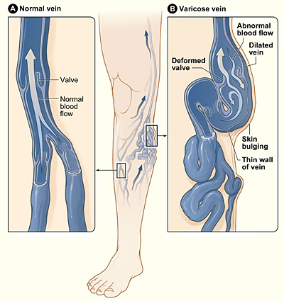 File:Varicose veins.jpg
