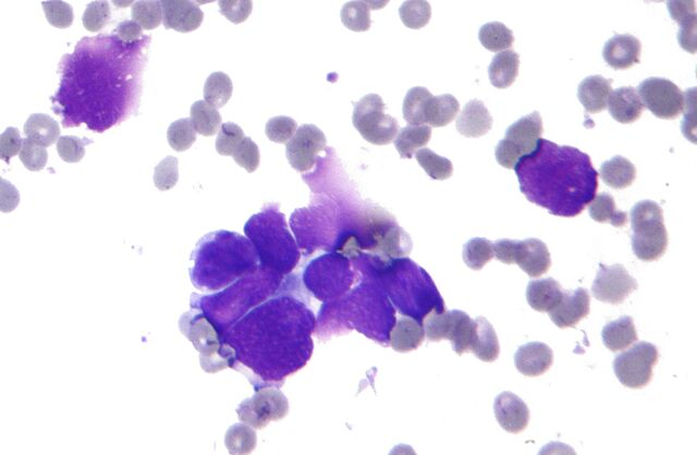 File:Small cell lung cancer - cytology.jpg
