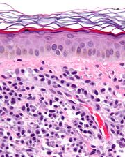 Mastocytosis - cropped - very high mag