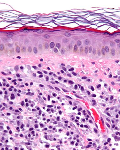 File:Mastocytosis - cropped - very high mag.jpg