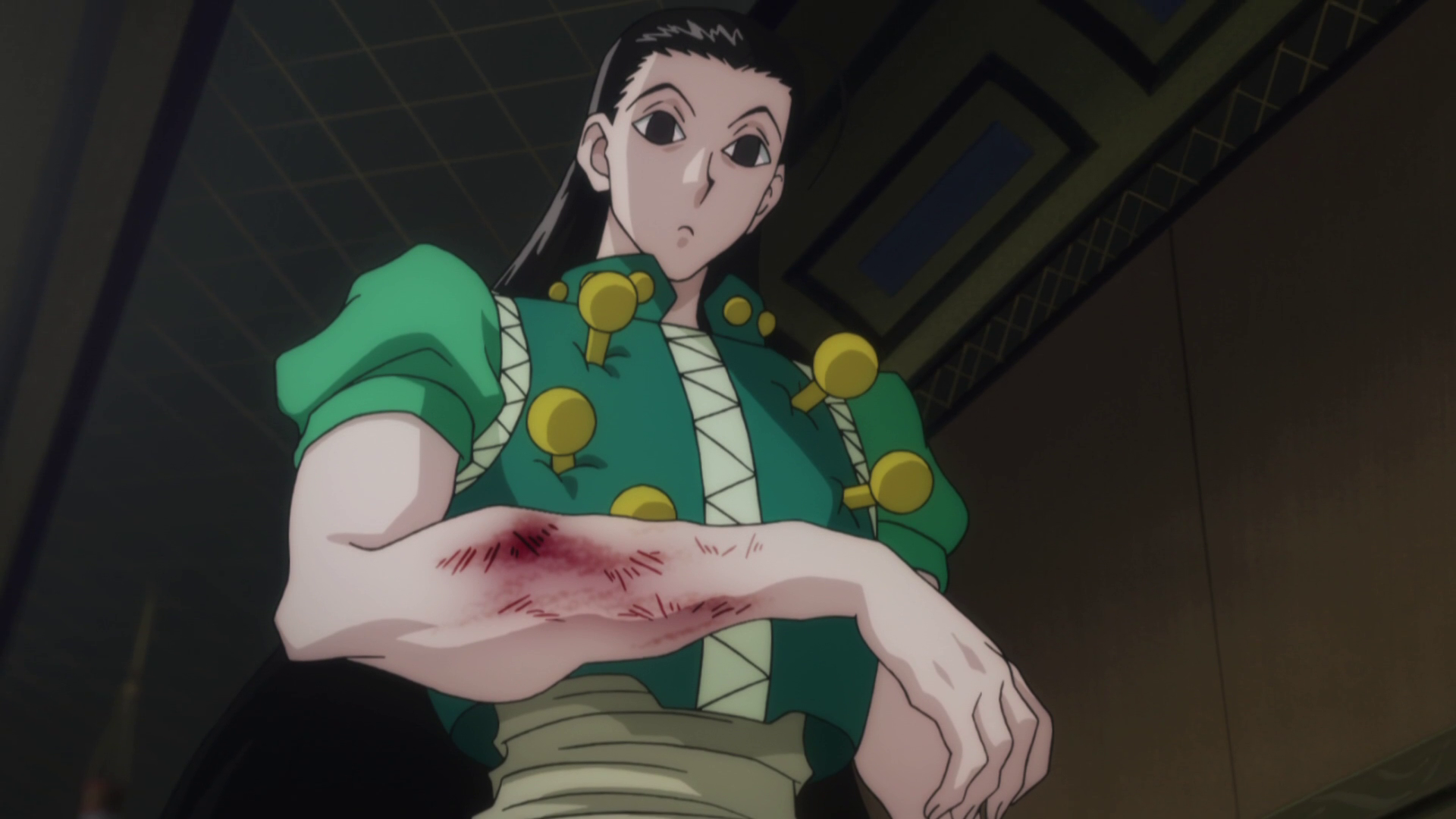 Image result for Hunter x Hunter illumi broken arm