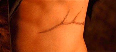 File:Murtagh-scar.jpg