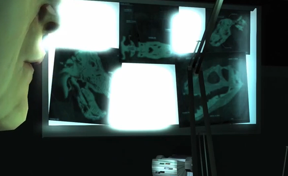 File:Dino MRI.png