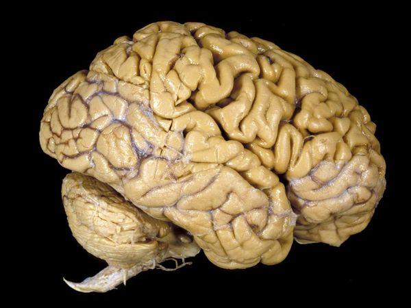 File:Brain1.jpg