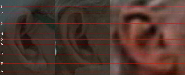 File:Alvar hanso hospitalized man ear comparison.jpg