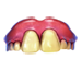 Standard 75x75 collect item faketeeth 01