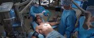 Tony operation