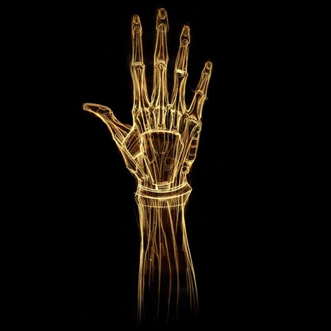 Файл:X ray hand.jpg