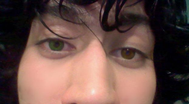 File:Heterochromia 2.jpg