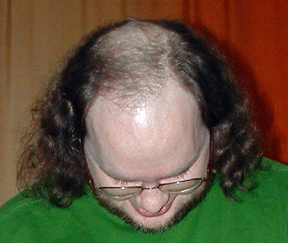File:Male pattern baldness.jpg