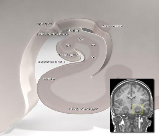 File:Hippocampus (brain).jpg