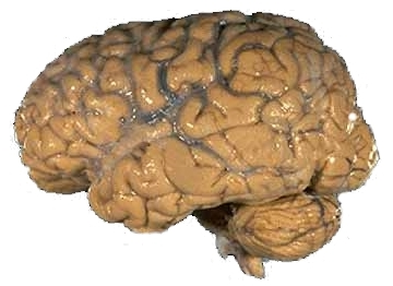 File:Human brain NIH.jpg
