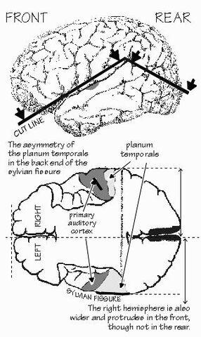 File:Planumtemporal.jpg