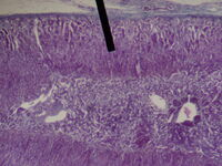 Adrenal gland (zona fasiculata)