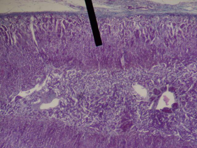 File:Adrenal gland (zona fasiculata).JPG