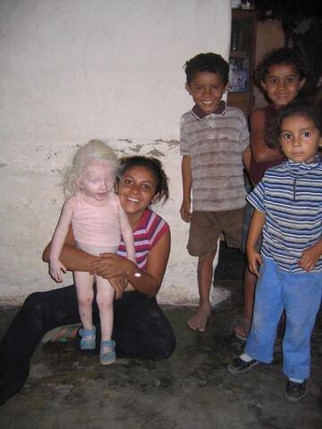 File:Albino girl honduras.jpg