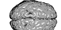 Cerebral hemispheres