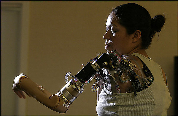 File:Claudia Mitchell - first thought-controlled prosthetic limb.jpg