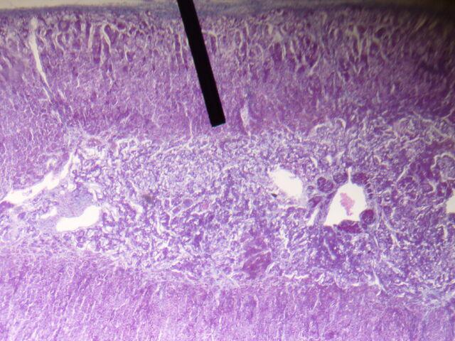 File:Adrenal gland (zona reticularis).JPG