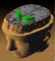 Schizophrenia PET scan