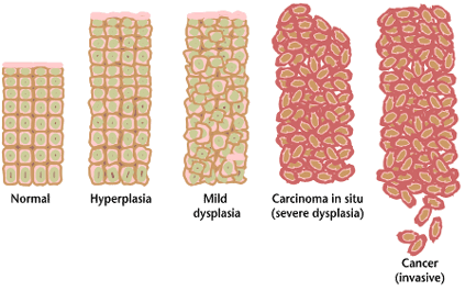 File:Cancer progression from NIH.png
