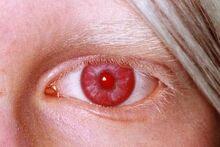 Rotes Auge.jpg