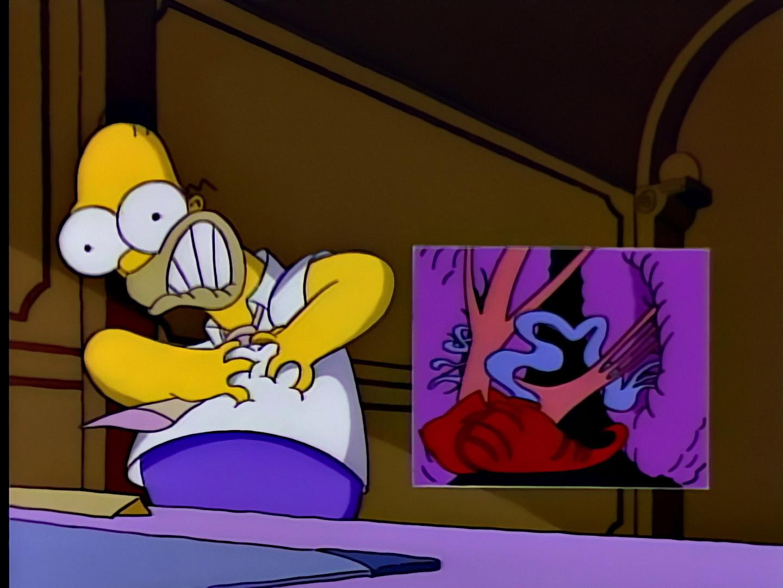 File:Homer's Triple Bypass 28.JPG