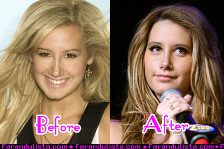 File:Ashley-tisdale-new-nose-001.jpg