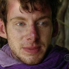 John after getting sunburned.