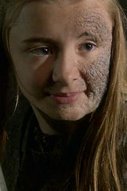Shireen Baratheon - GoT