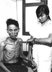 Starved Vietnamese man, 1966