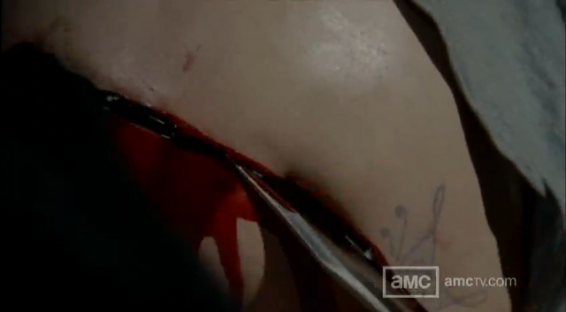 File:Lori C-section Death.png