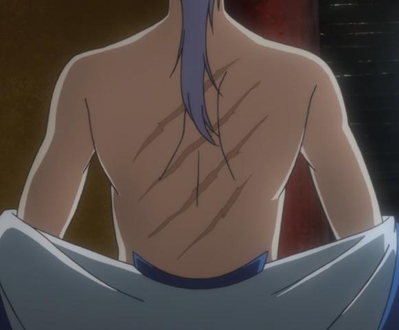 File:Kija's Scars.png