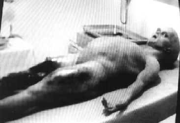 File:Alien-autopsy-10-1-.jpg