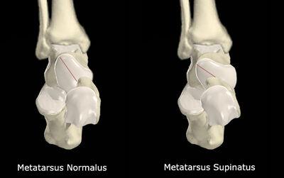 Metatarsus Supinatus vs No Met Supinatus