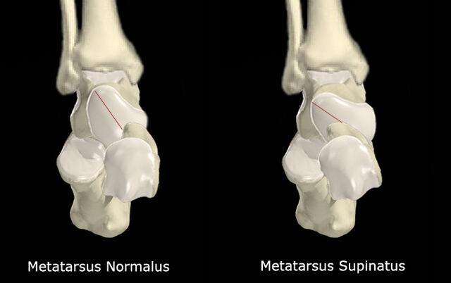 File:Metatarsus Supinatus vs No Met Supinatus.jpg