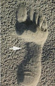 Normal Foot Imprint