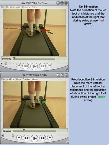 File:Treadmill Analysis - Case 3 demonstrating improvement using ProStims in RFS.jpg